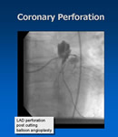 Coronary Perforation