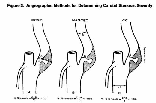 Angiographic Methods for Determining Carotid Stenosis Severity